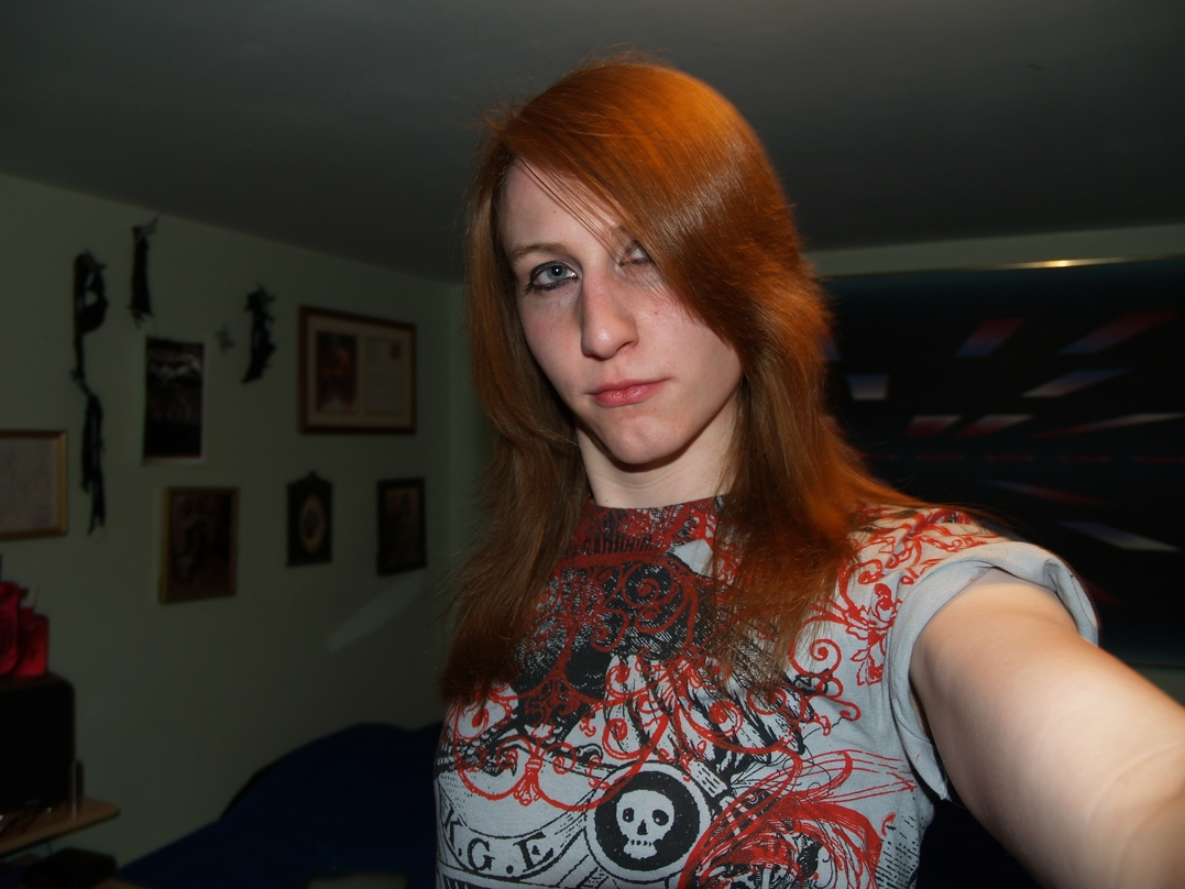 Mtf Transition Before And After Pic