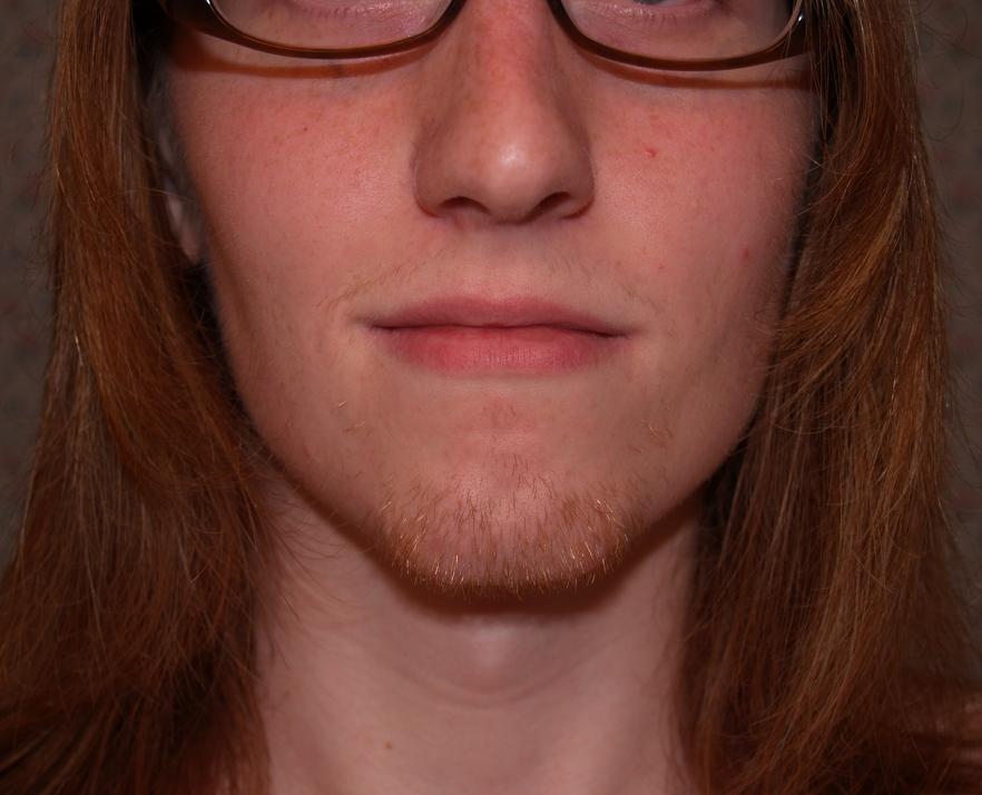 Facial Hair Electrolysis 86
